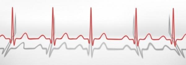 кардиограмма